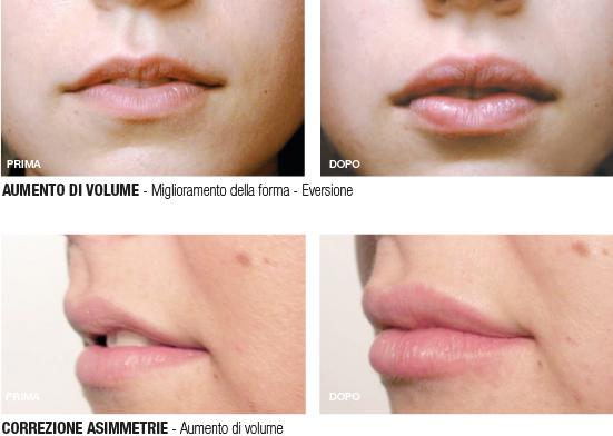 pre&post regenyal idea lips