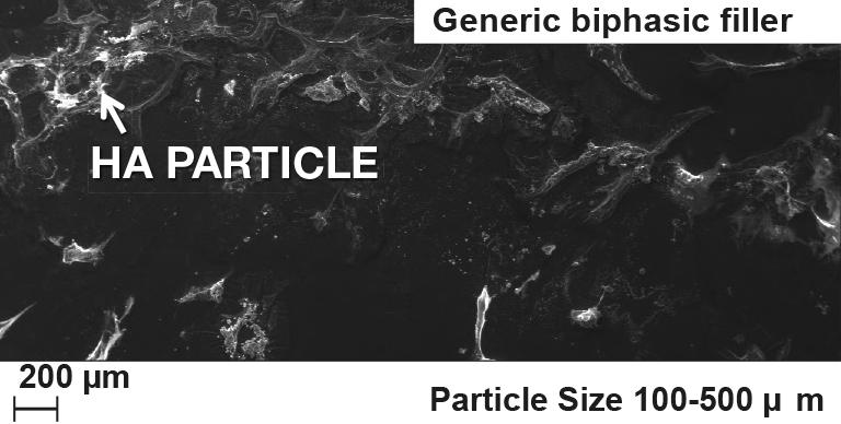 generic biphasic filler